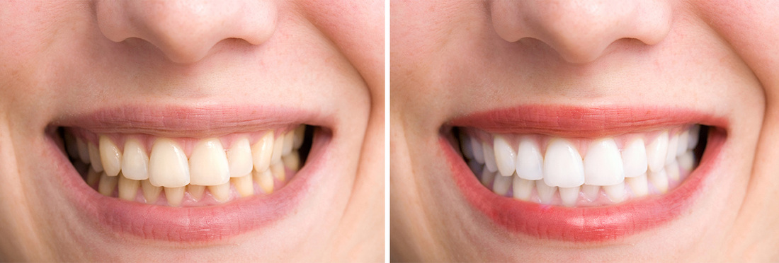 Before And After Teeth Whitening, Polishing, Brightening in Adobe Photoshop